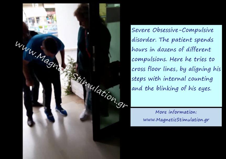 Θεραπεία βαρειάς ιδεοψυχαναγκαστικής διαταραχής με επαναληπτικό διακρανιακό μαγνητικό ερεθισμό